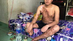 Mua bảo hiểm tai nạn lao động tại Bình Định